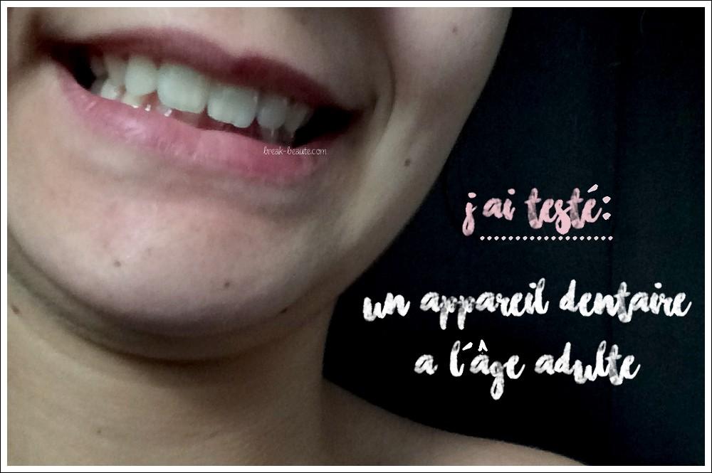 J'ai porté un appareil dentaire à l'âge adulte (avant / après)